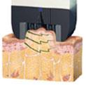지방세포에 전기에너지 전달